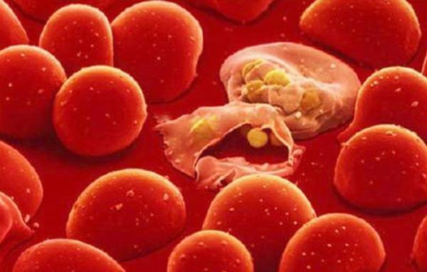 Chỉ số LYM là viết tắt của bạch cầu lympho