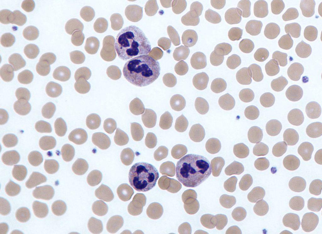 neutrophil là gì