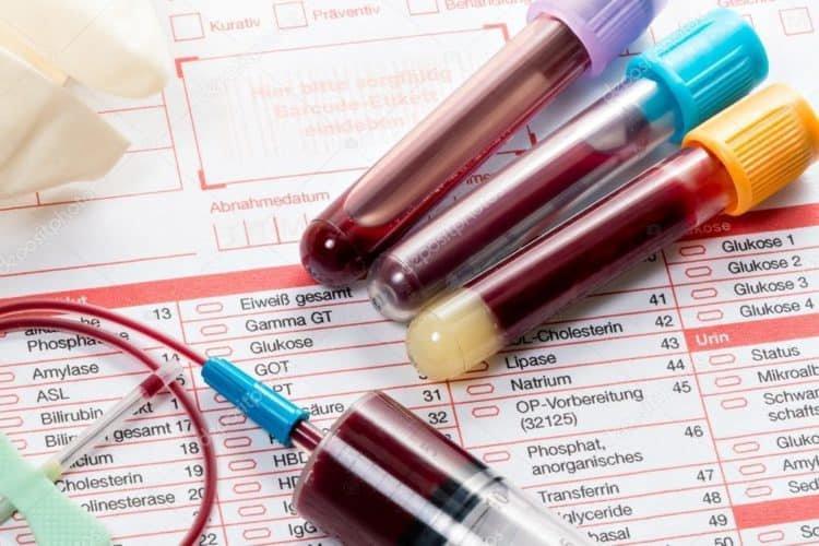 Xét nghiệm máu để làm gì?