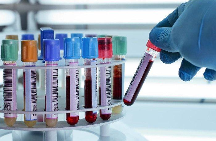Số lượng hồng cầu trong một thể tích máu